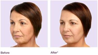 Juvéderm Before & After