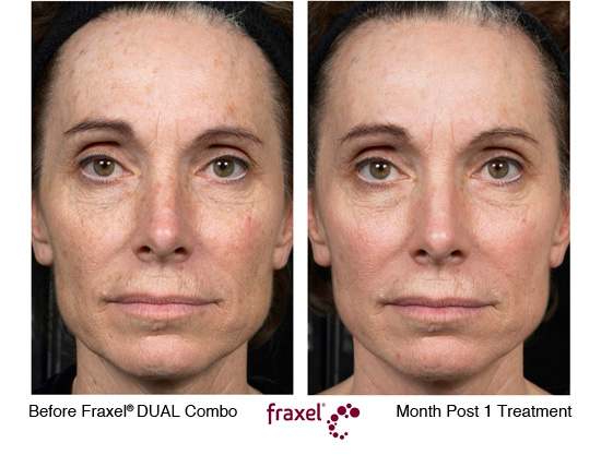 Fraxel Before & After