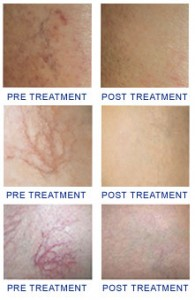 Spider vein removal Before & After