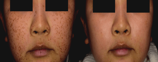 PicoSure Laser Before & After